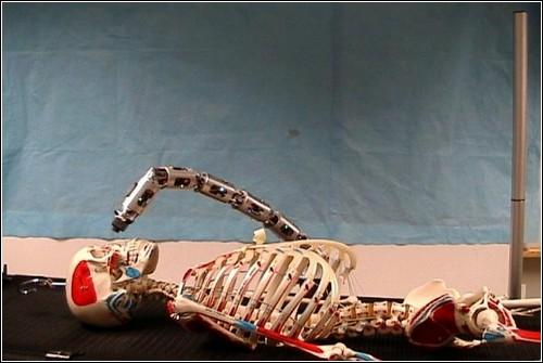 Рука-робот производит осмотр головы пациента.