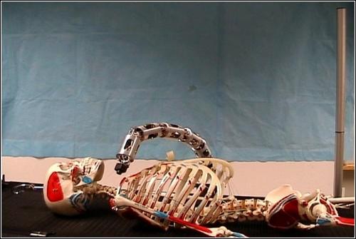 Рука-робот производит осмотр горла пациента.