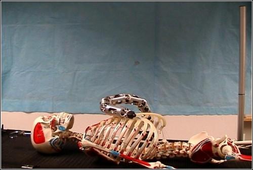 Рука-робот производит осмотр брюшной полости пациента.