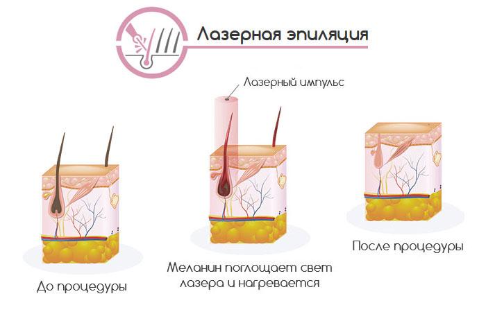 Как действует лазер на волосяной фолликул.