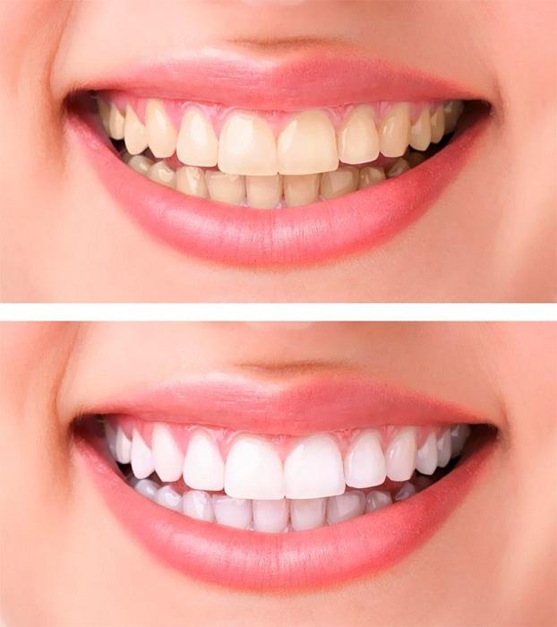 Активированный уголь поможет отбелить зубы