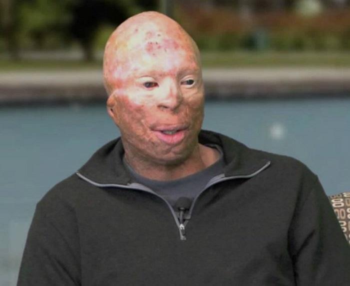 Джейсону Шечтерли врачи в буквальном смысле удалили лицо
