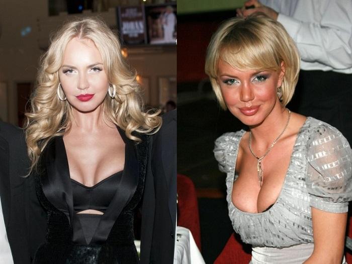 Маша Малиновская увеличивала себе губы