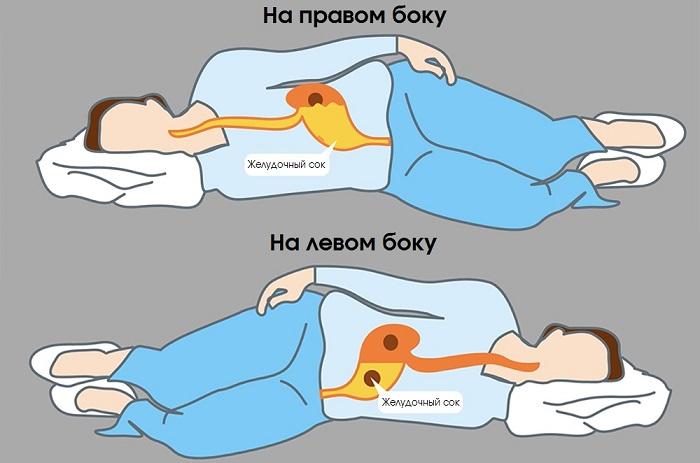При сне на левом боку желудочный сок не попадает в пищевод. / Фото: Chtoikak.ru