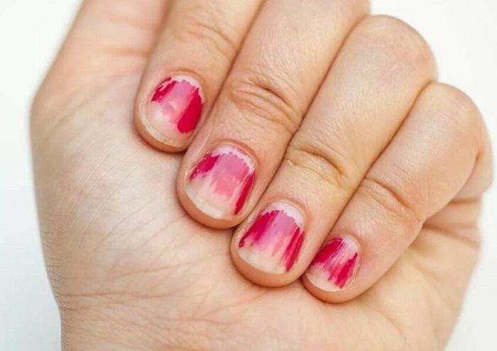 Неухоженные ногти портят весь образ. / Фото: Formulakrasoty.com