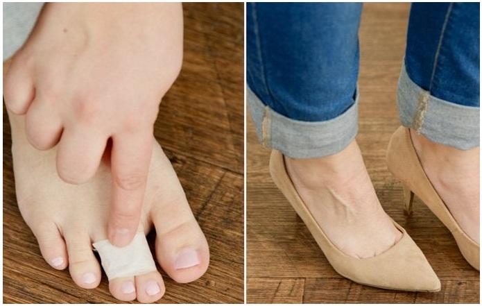 Нужно обмотать лейкопластырем два пальца, чтобы снизить нагрузку на ноги. / Фото: smekalo4ka.ru