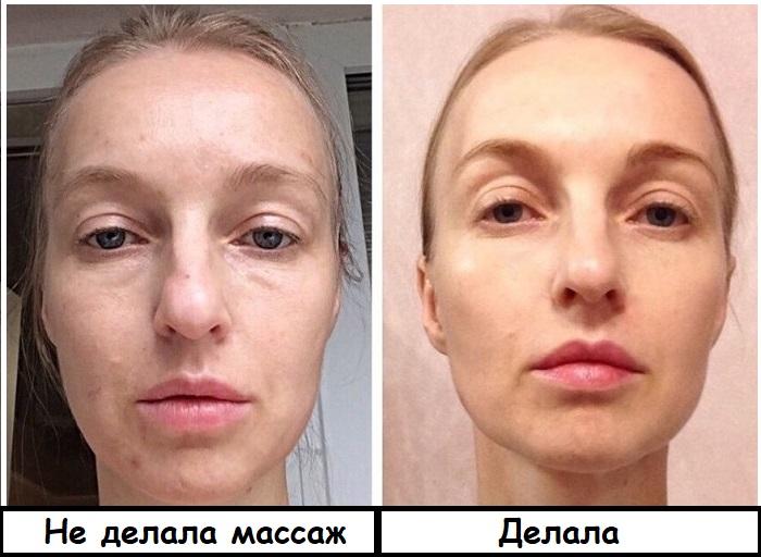 Лицо до лимфодренажного массажа и после