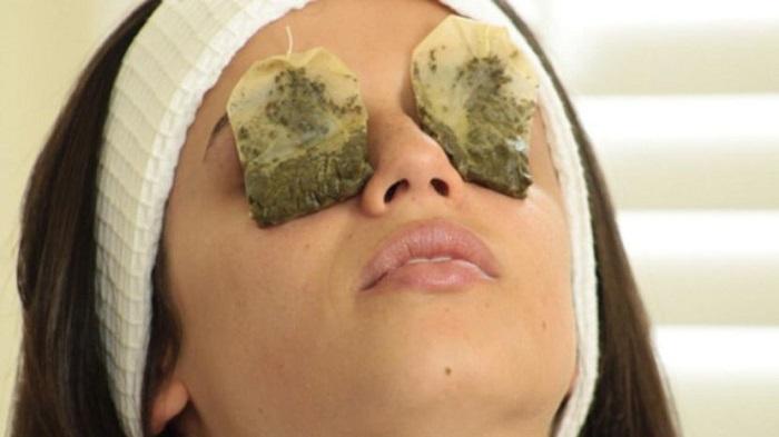 Чайный пакетик поможет снять отек, воспаление и устранит мешки под глазами. / Фото: salonveronika.ru