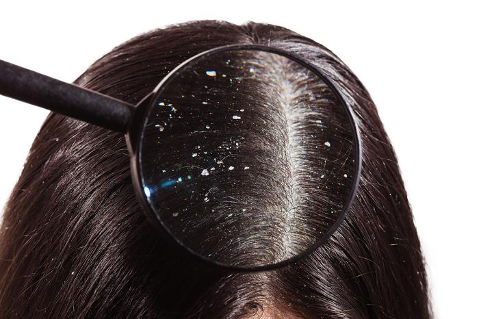 Регулярный сон с мокрыми волосами провоцируют появление перхоти. / Фото: shpilki.net