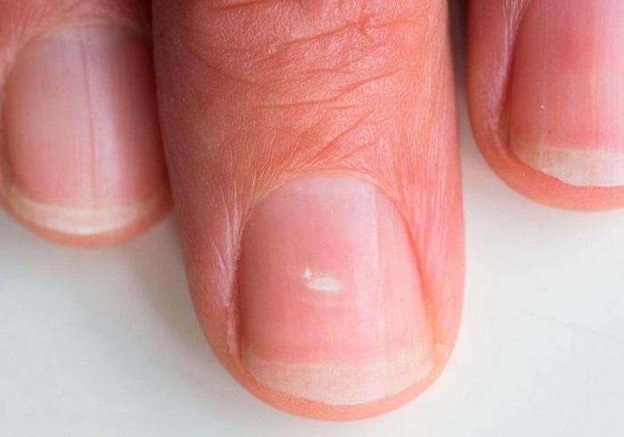 Периодически на ногтях могут появляться белые пятна. / Фото: sn-portal.ru