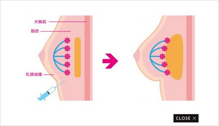 Cinderella Breast Augmentation или как японки увеличивают грудь на 24 часа