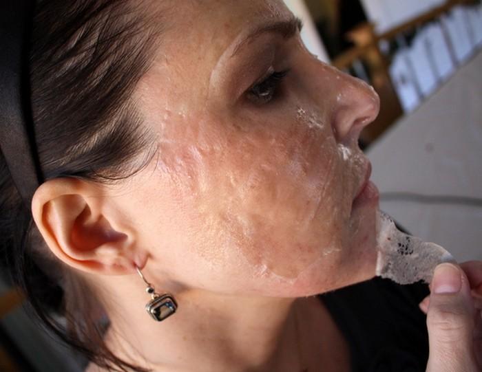 Как сделать маску против черных точек из желатина