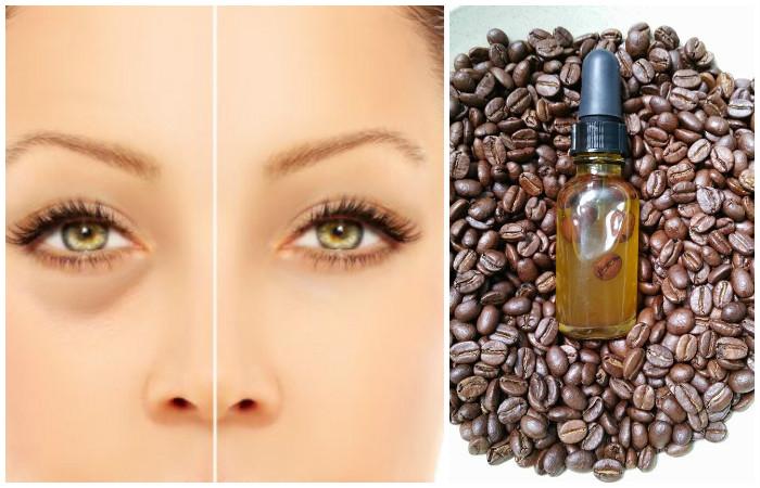 Как сделать эффективное и недорогое средство от мешков и синяков под глазами