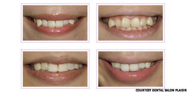 Модные кривые зубы Yaeba становятся всё более популярными среди японской молодежи