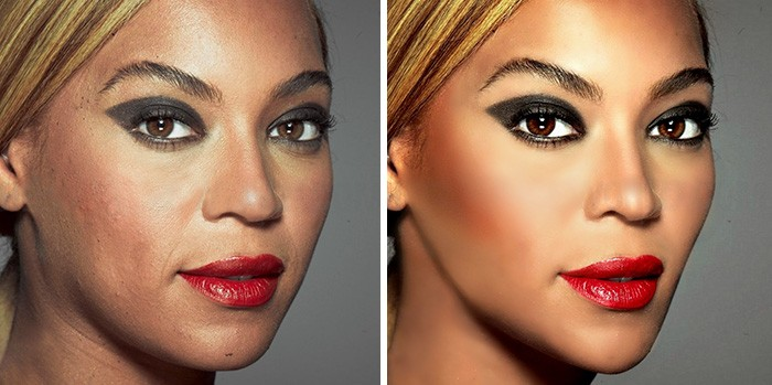 И на Beyonce бывают пятна.