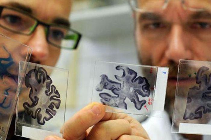 Учёные все ещё пытаются установить причины болезни Альцгеймера и найти лечение.