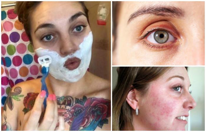 7 симптомов опасных заболеваний, которые всегда «написаны» на лице