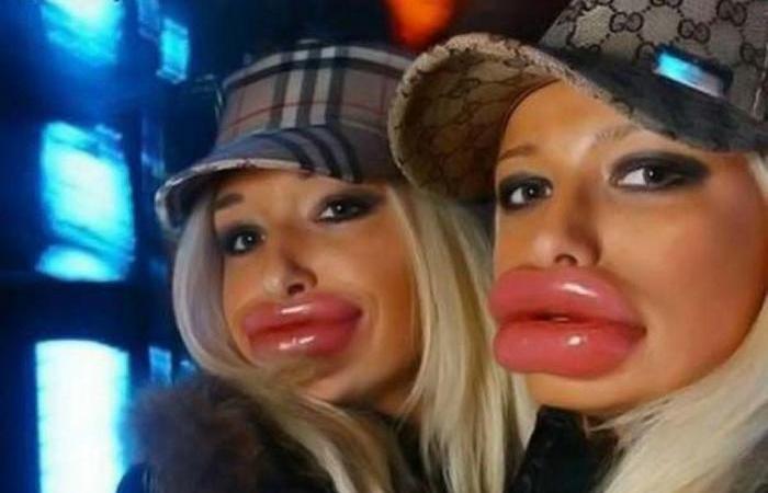 10 бьюти-хитростей для пухлых губ без уколов.