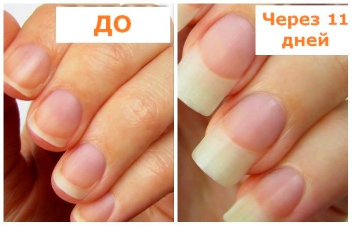 Чтобы отрастить здоровые и крепкие ногти в два раза быстрее.