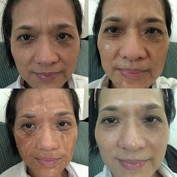Маска для лица Hanacure  Multi-Action Treatment Mask прибавит морщин на полчаса, чтобы затем омолодить на 10 лет