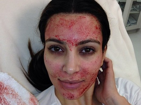 Ким Кардашян испытывает на себе «вампирский лифтинг»