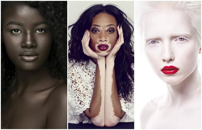 5 людей с удивительным цветом кожи