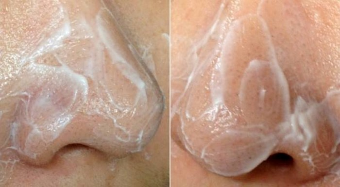 как быстро избавиться от запаха изо рта