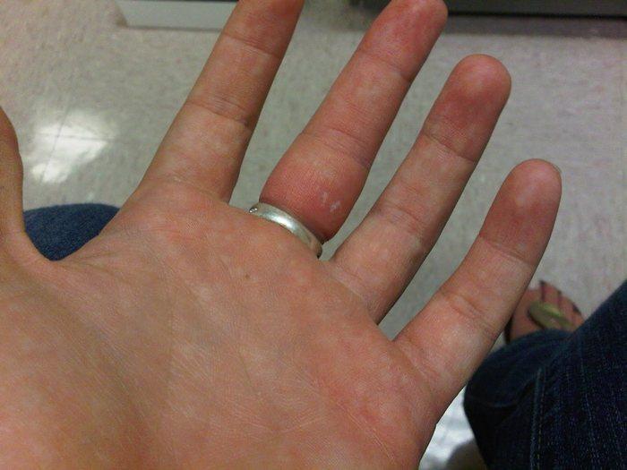 Как снять кольцо, если оно застряло на пальце
