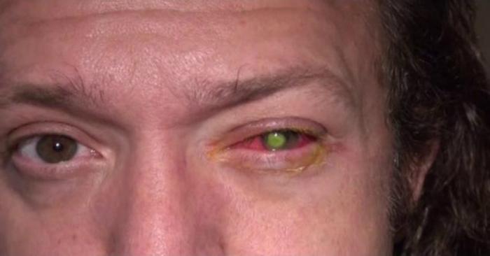 Вот так выглядел глаз Чада.