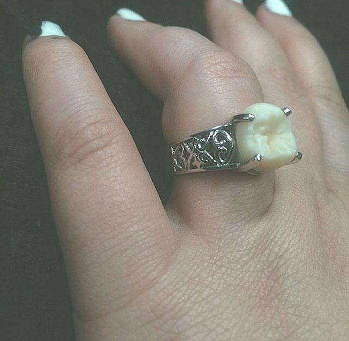 Что будет, если подарить любимой кольцо не с бриллиантом, а собственным зубом мудрости