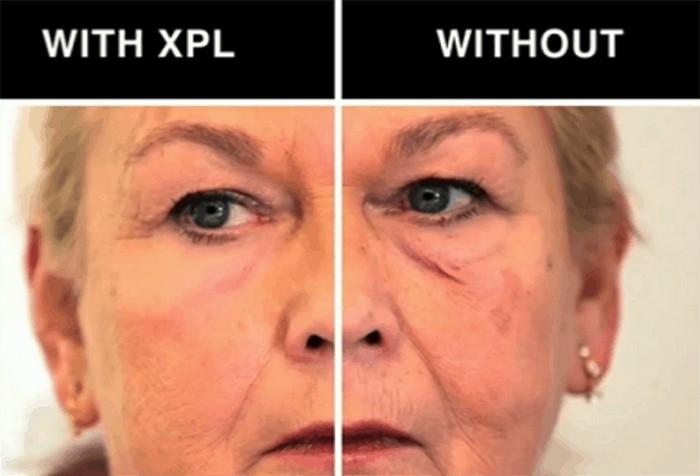 Учёные разработали «вторую кожу» - самое эффективное средство против морщин на сегодня