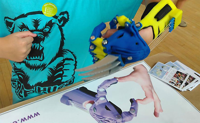 Детский протез кулак Росомахи распечатан на 3D-принтере