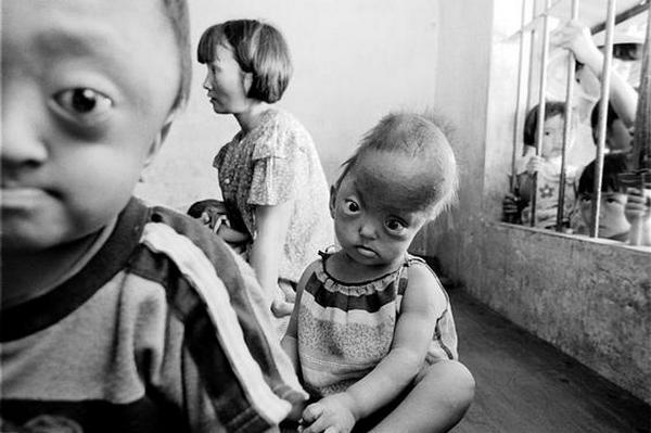 Жертвы применения химического оружия во Вьетнаме.