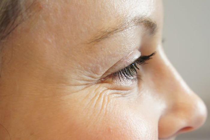 Как вылечить себорею на коже головы в домашних условиях 55