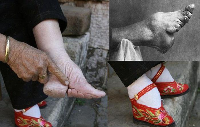 Ноги-лотос