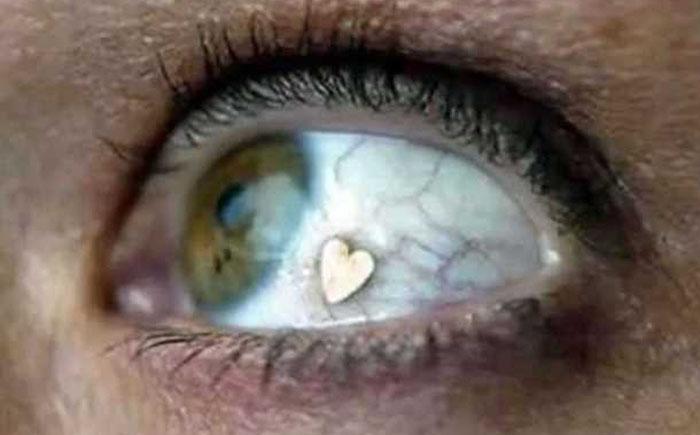 Глазной имплантат