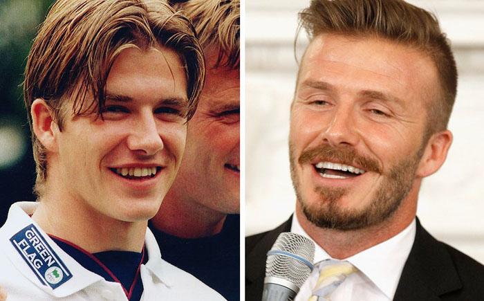10 знаменитостей с самыми дорогими улыбками