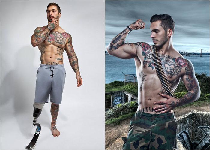 Алекс Мински, модель с протезом ноги