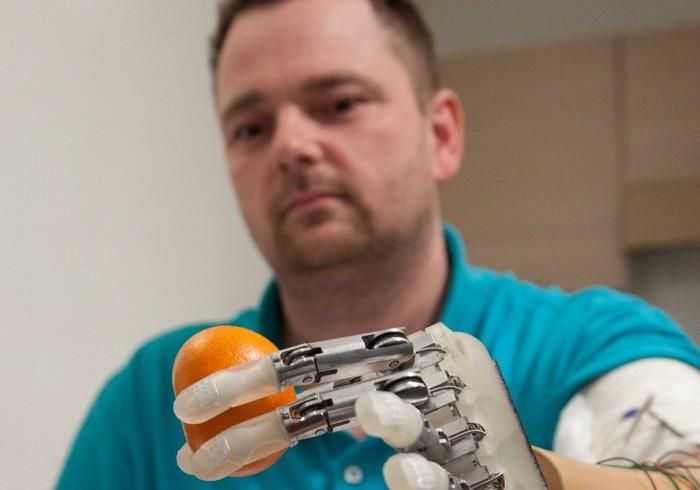 Bionic Hand – протез руки с тактильными ощущениями