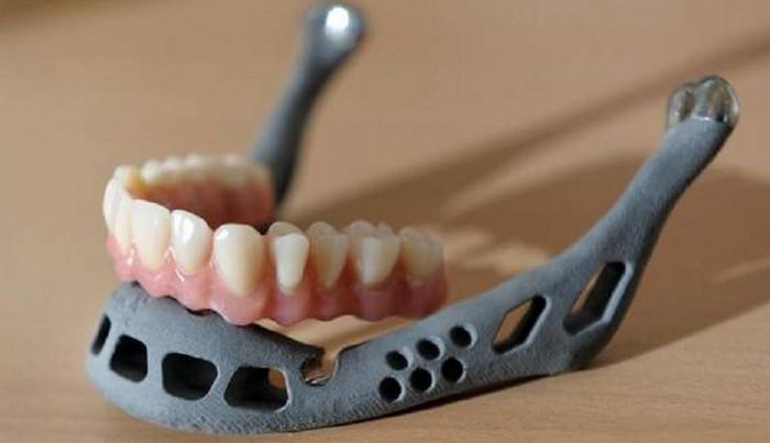 Вставная челюсть, напечатанная на принтере