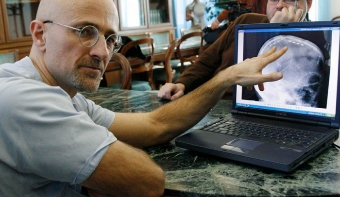 Серджио Канаверо - итальянский нейрохирург. | Фото: cdn.lolwot.com.