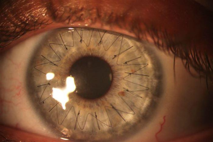 Швы, наложенные во время пересадки роговой оболочки глаза.