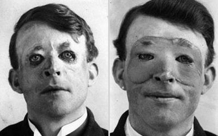Один из первых людей, перенесших пластическую операцию.