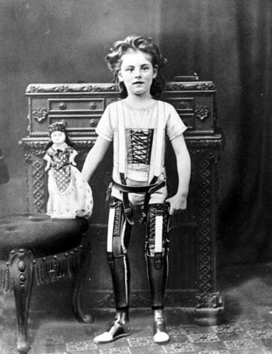 Девочка с протезами вместо ног.