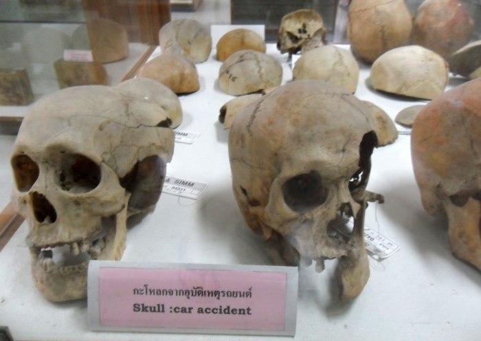 Музей, также известный как «Музей смерти» не для тех, у кого неустойчивая психика.