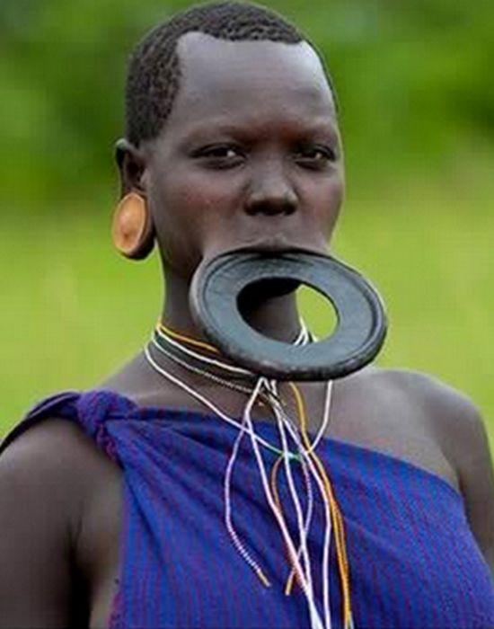 Экстремальная модификациия губ.