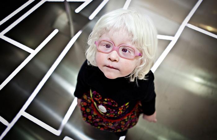 Близорукость при альбинизме.
