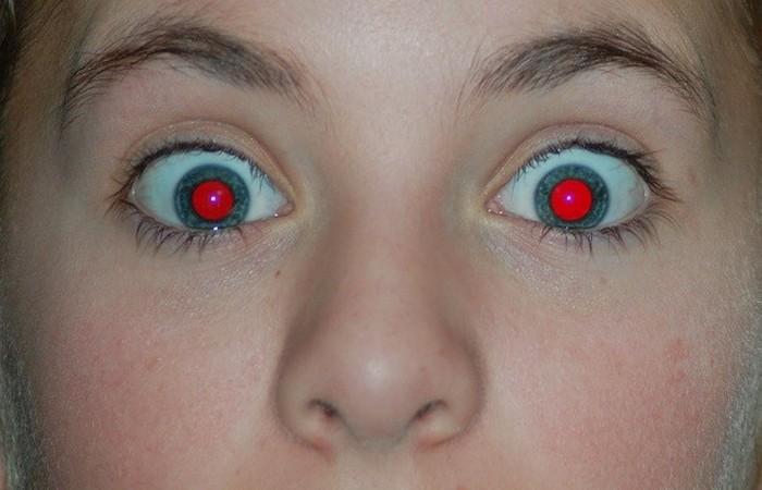 Свет, отраженный от задней части глаза.