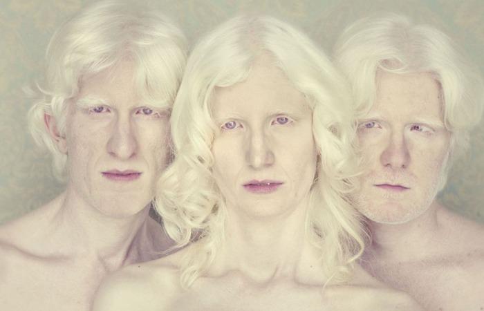 Альбинизм - отсутствие пигментации.