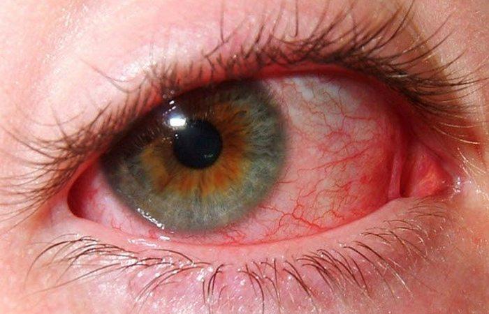 Полет на Марс: деформация глаз и потеря зрения.